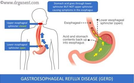 Gastroesophagael Reflux Disease