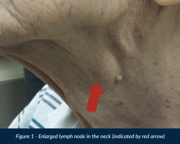 Lymph Node in The Neck